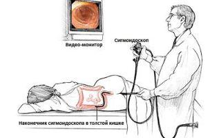 Трихоцефалез у человека: что это, профилактика и диагностика