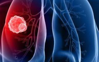 Лечение рака легких и правила питания, методы профилактики