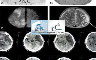 Ишемический инсульт: стадии патологии, виды обследований и алгоритм проведения, проявления на КТ и МРТ