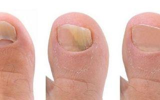 Чем лечить грибок ногтей при грудном вскармливании: самые эффективные методики, препараты и народные средства
