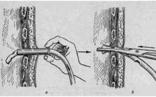 Плевральная пункция: показания и противопоказания, подготовительные мероприятия, техника проведения