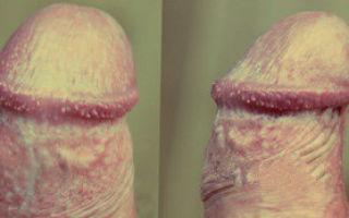Кандидозный бланопостит у мужчин: симптомы и лечение в домашних условиях