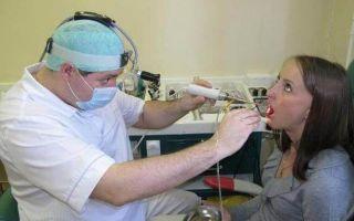 Хроническая ангина: что это, как лечить и нужно ли удалять миндалины?