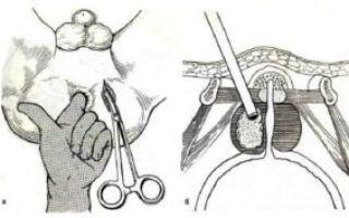 Абсцесс предстательной железы: причины и признаки болезни, диагностические исследования и лечебная тактика