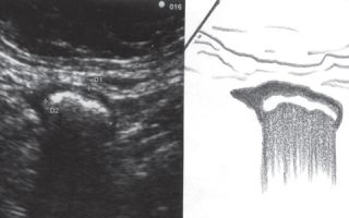 Дивертикулез кишечника: ирригоскопия и МРТ для определения заболевания