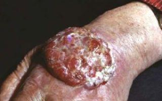 Выбухающая дерматофибросаркома кожи: факторы развития опухоли, типичные симптомы, методики лечения и прогноз