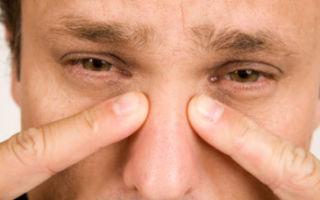 Доброкачественные опухоли полости носа: что это такое, виды новообразований, основные симптомы и методы лечения
