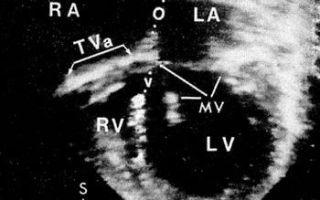 Атрезия трехстворчатого клапана: провоцирующие факторы, характерные симптомы, методы обследования и принципы лечения