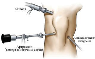 Посттравматический артроз коленного сустава: симптомы, диагностика и методы лечения