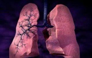 Фиброз легких: что это такое и как лечить заболевание?