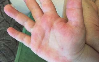 Аллергия на руках и ногах у ребенка: причины появления красных пятен на руках и ногах, лечение аллергии на ногах и руках у ребенка