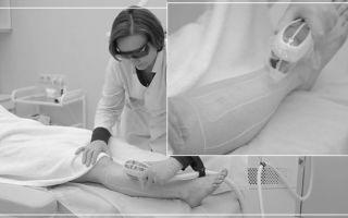 Гипертихоз: причины появления, классификация заболевания, типичные проявления и методы лечения