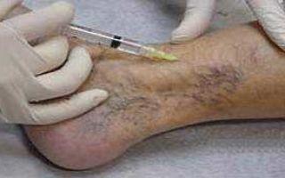 Тромбофлебит: тромбоз с воспалением стенки вены, как проявляется виды и профилактика