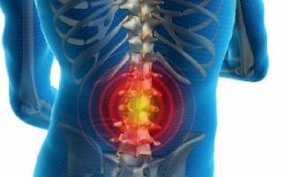 Грыжи межпозвоночных дисков — симптомы, лечение и удаление