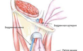 Бедренная грыжа: причины возникновения, типичные признаки, тактика лечения и возможные осложнения