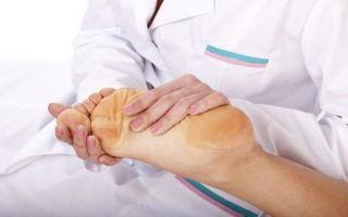 Гиперостоз лобной кости, костей черепа и других костей: причины развития, характерные проявления, диагностика и лечебные мероприятия