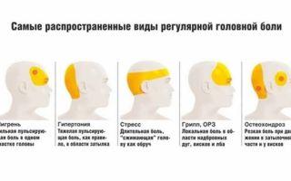 Как отличить боль при мигрени, какая разница в лечении?