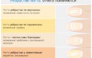 Линии Бо-Рейля на ногтях, борозды на ногтевой пластине: как выглядят, почему появляются, лечение