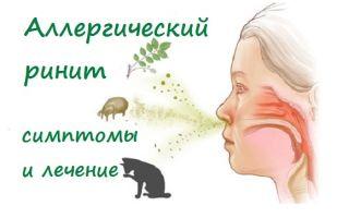 Аллергический ринит: симптомы и лечение, осложнения заболевания и советы аллергикам