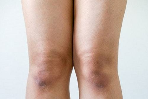 Грубая кожа на локтях и коленях: почему шелушится кожа на локтях, как смягчить кожу