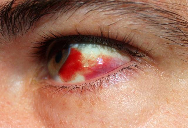 Лопнул сосуд в глазу: причины, лечение, какие капли капать, чтобы убрать красноту
