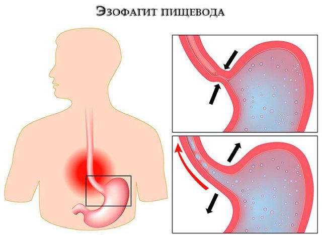 Эзофагит: симптомы и лечение, профилактика и возможные осложнения