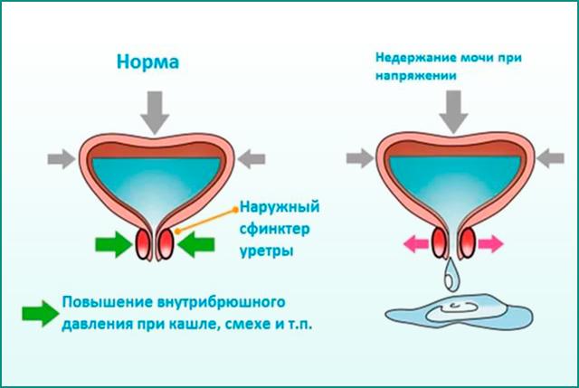 Уретрит у пожилых, инфекции мочевых путей в пожилом возрасте: симптомы, лечение