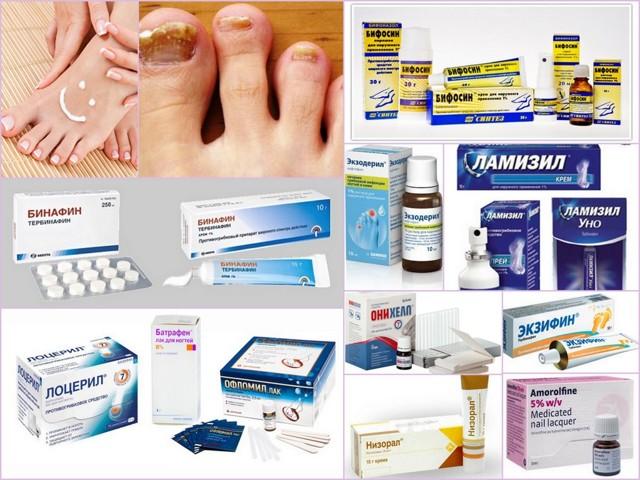Чем лечить грибок ногтей: лекарства, мази, лазер и средства народной медицины при грибке ногтей