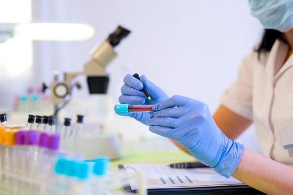 ВИЧ-инфекция: симптомы, диагностика, анализ на ВИЧ, лечение и прогноз
