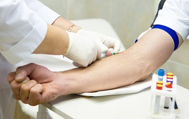 Аллергия на пенициллин: симптомы, как проявляется, чем заменить антибиотик