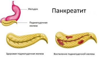 О чем говорит колющая боль в нижней части живота справа?