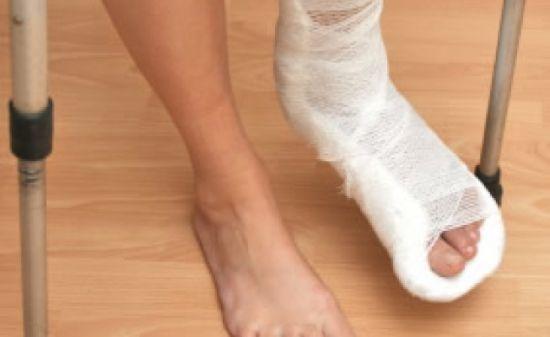 Перелом плюсневой кости стопы: сколько заживает у взрослых, сколько ходить в гипсе, лечение