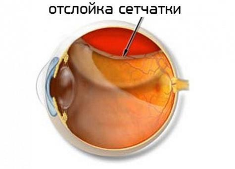Отслоение и дегенерация сетчатки глаза — причины, симптомы, лечение, операция при отслойке сетчатки
