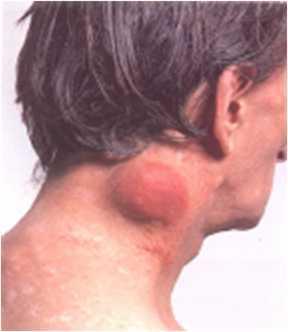 Воспалились паховые лимфоузлы, это говорит о заражении ВИЧ?