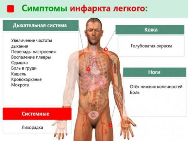 Инфаркт легкого: симптомы, лечение и прогноз, диагностика и рентген