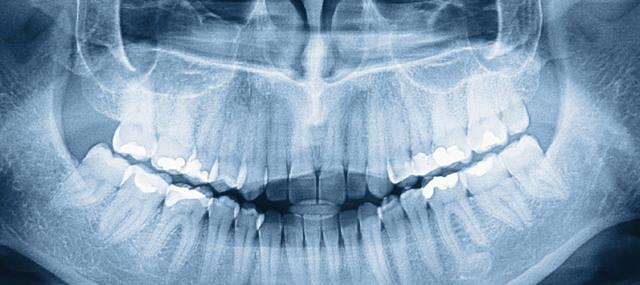 Вредна ли ортопантомограмма: насколько опасны современные рентгенологические исследования в стоматологии
