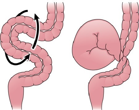 Заворот кишок: причины, симптомы у взрослых и у детей, первая помощь, лечение