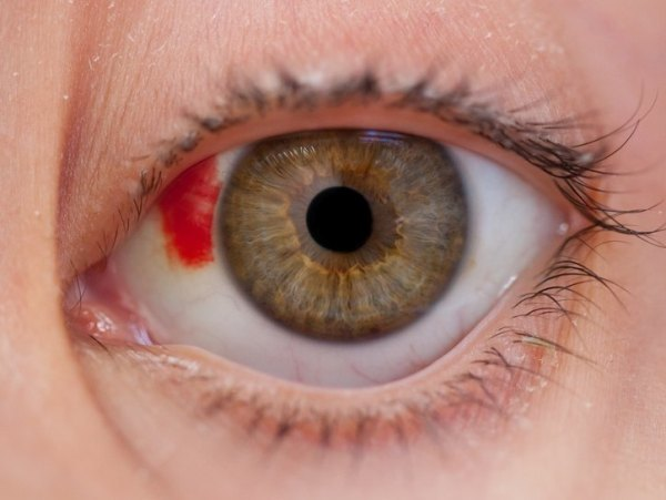 Ушиб глаза: повреждение роговицы глаза, сетчатки, конъюнктивы, лечение при ушибах глаз