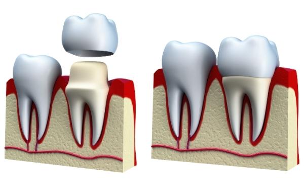 Перелом зуба (корня) – симптомы, причины и лечение