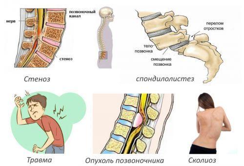 Рентген позвоночника: что показывает, подготовка, как часто можно делать рентген