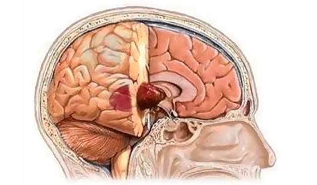 Опухоль головного мозга: симптомы, лечение, удаление опухоли головного мозга