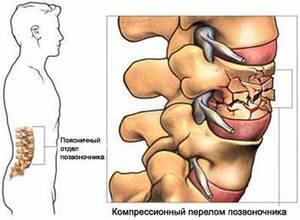 Перелом поясничного отдела позвоночника: симптомы, последствия, лечение, первая помощь