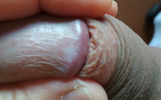 Облитерирующий ксеротический баланит, как лечить склерозирующий лихен