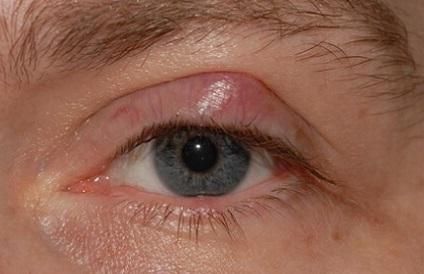 Халязион: симптомы, причины заболевания, диагностика, лечение халязиона и профилактика.