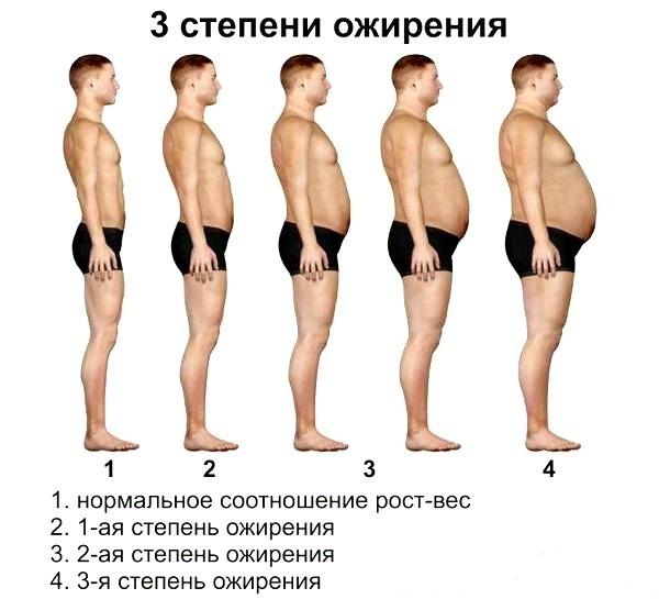 Абдоминальное ожирение: причины, диагностика, методы лечения | ОкейДок