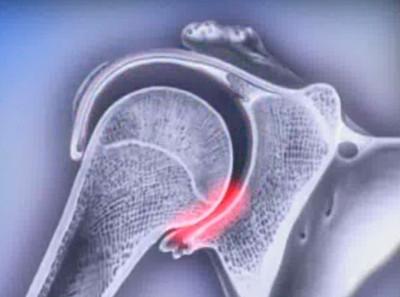 Привычный вывих плечевого сустава: как лечить, ЛФК при привычном вывихе плеча