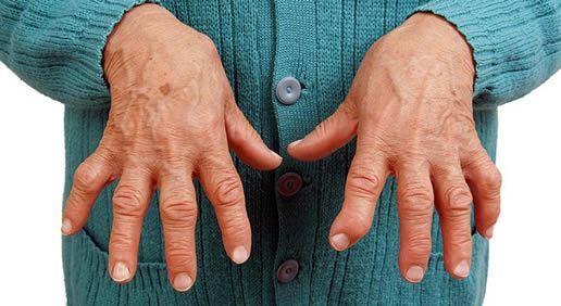 Ревматоидный артрит: симптомы, лечение, диагностика, народное лечение ревматоидного артрита