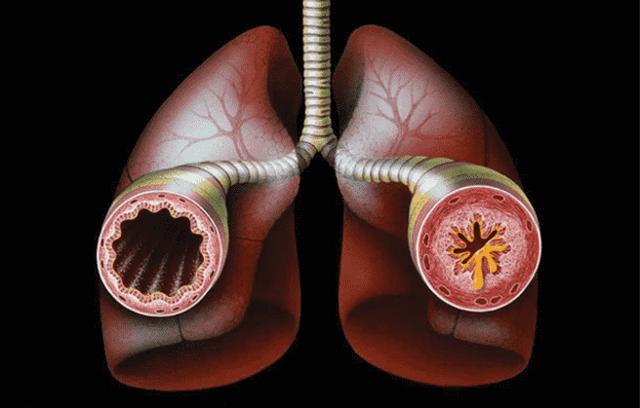 Муколитики и отхаркивающие средства: в чем разница, препараты, показания к применению