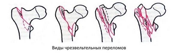 Открытый перелом бедренной кости со смещением и без: первая помощь, сроки восстановления