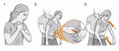 Можно ли вдохнуть инородное тело и какими будут последствия